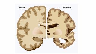 Numărul deceselor legate de Alzheimer a crescut în SUA