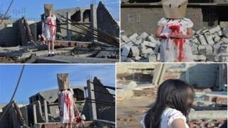 Arestat pentru fotografii trucate cu copii răniți, prezentate ca fiind din Alep