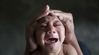 Cazuri de microcefalie asociate virusului Zika, în Honduras, în creștere