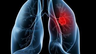 Ce alimente cresc riscul de cancer pulmonar?