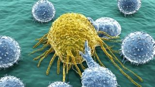 Celulele din corpul nostru, învăţate să lupte împotriva cancerului