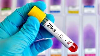 Posibilă epidemie de microcefalie, cauzată de virusul Zika?
