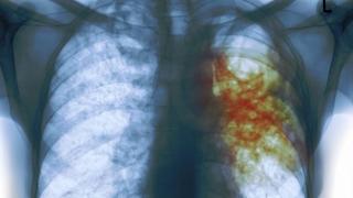 Ce se va întâmpla cu tratamentul bolnavilor de tuberculoză?