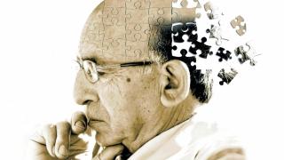 Nivelul scăzut de glucoză din creier, primul semn de Alzheimer