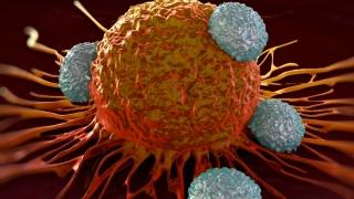 OARE? S-a reușit oprirea răspândirii celulelor canceroase în organism?
