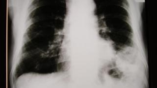 O nouă superspecializare în domeniul pneumologiei
