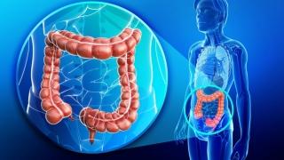 România: În 25 de ani s-a triplat numărul de cazuri de cancer de colon