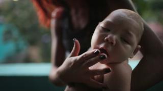 Salvador confirmă alte două cazuri de microcefalie asociată virusului Zika