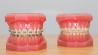 Este indicat să aplicăm aparatul dentar în perioada vacanței?