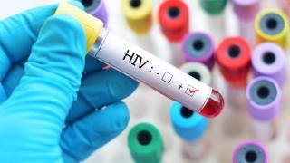 Extraordinar! A fost găsit anticorpul care vindecă complet HIV!