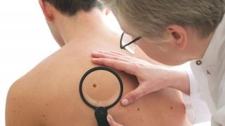 """Fumătorii au """"şanse mai mici de a supravieţui cancerului de piele"""""""