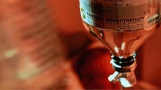 Incredibil! Chimioterapia şi efectele sale secundare pot fi evitate în cazul celui mai frecvent tip de cancer la femei