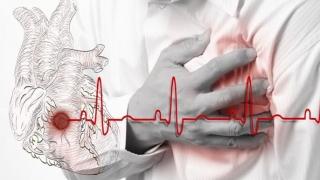 Ce trebuie să faceţi în caz de infarct