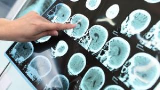 Rezultate promiţătoare împotriva Alzheimer, generate de un nou medicament