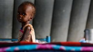 15.000.000 de oameni nu au ce mânca! 40% din copii suferă de malnutriţie!