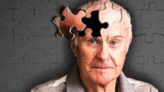 Oprește declinul minții! 7 metode de a spune STOP morții creierului!
