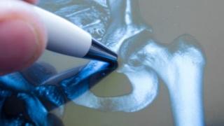 Pacienţii cu afecţiuni neurodegenerative, lipsiți de accesul la tratamente inovative