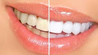 Smalţul dentar s-ar putea regenera? Un studiu al cercetătorilor britanici