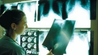 Anchetă la o grădiniţă, după ce o îngrijitoare a fost diagnosticată cu TBC