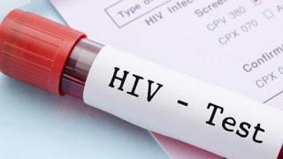 V-aţi testat vreodată pentru HIV? Câți bolnavi sunt în Constanţa şi care sunt grupele de risc