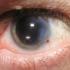 66% din români nu știu că operația de cataractă poate corecta și alte defecte de vedere