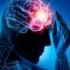 Ce trebuie să știm despre un accident vascular cerebral? Și câteva sfaturi...