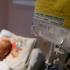 Ne DECLANȘĂM singuri CANCERUL!? O spune geniul neurochirurgiei românești!