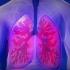 Tuberculoza, cea mai mortală boală infecţioasă