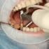 Ești programat pentru un implant dentar? Iată tot ce trebuie sa știi înainte de vizita la medic