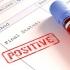 GRAV! Pacienți HIV din Constanța, nevoiți să ÎNTRERUPĂ TRATAMENTUL!