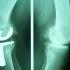 Cea mai nouă proteză de genunchi, folosită în premieră într-un spital de stat din România