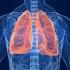 Tuberculoza amenință Europa. Migranții sunt primele victime